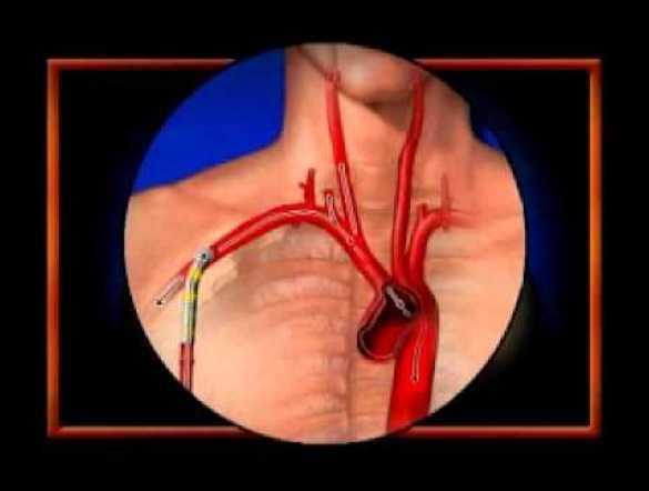 Axillary Cannulation